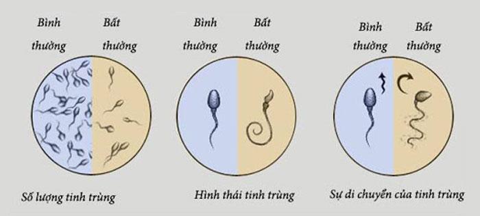 Những dấu hiệu nhận biết tinh trùng yếu